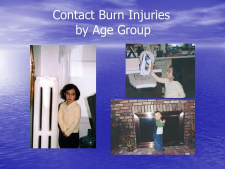 Contact Burn Injuries by Age Group. Candle-Related Incidents Residential Fires Involving Candles 1993 – 1995 Fires: 7,600 Deaths: 80 Injuries: 840 Estimated.
