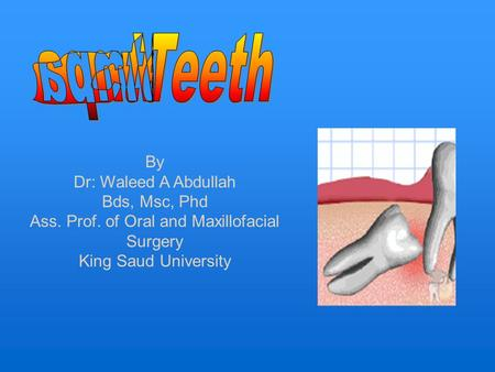 By Dr: Waleed A Abdullah Bds, Msc, Phd Ass. Prof. of Oral and Maxillofacial Surgery King Saud University.