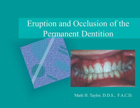 Eruption and Occlusion of the Permanent Dentition Mark H. Taylor, D.D.S., F.A.C.D.