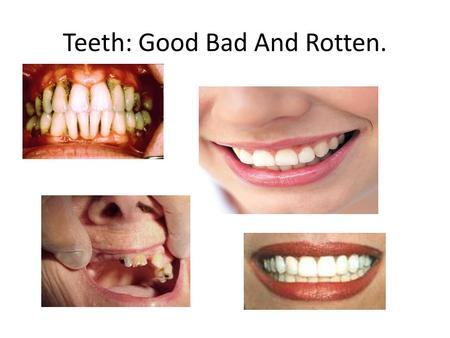 Teeth: Good Bad And Rotten.. I made this slideshow to emphasize the importance of brushing your teeth.