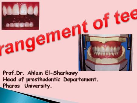 Arrangement of teeth Prof.Dr. Ahlam El-Sharkawy