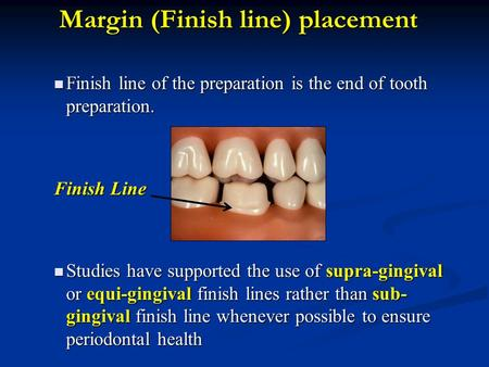Margin (Finish line) placement Finish line of the preparation is the end of tooth preparation. Finish line of the preparation is the end of tooth preparation.