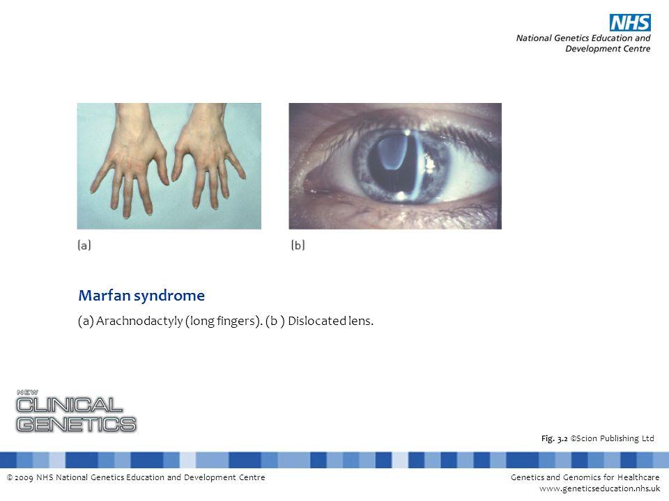 Genetics and Genomics for Healthcare www.geneticseducation.nhs.uk © 2009 NHS National Genetics Education and Development Centre Fig.