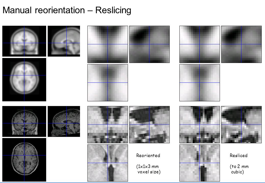 Quantifying image alignment *Registration intuitively relies on the concept of aligning images to increase their similarity *This needs to be mathematically formalised *We need practical way(s) of measuring similarity *Using interpolation we can find the intensity at equivalent voxels *(equivalent according to the current transformation parameter estimates)
