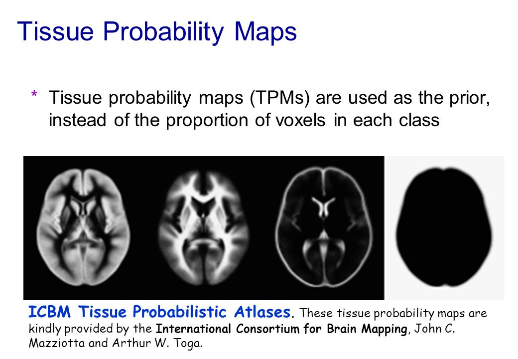 Tissue Probability Maps for New Segment Includes additional non-brain tissue classes (bone, and soft tissue)