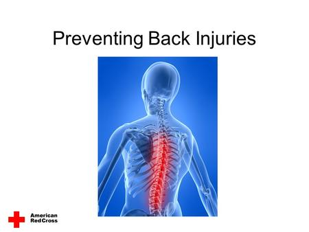Preventing Back Injuries. Reduce Your Risk of Back Injuries Most Americans experience back pain at some point in their lives. Back injuries account for.