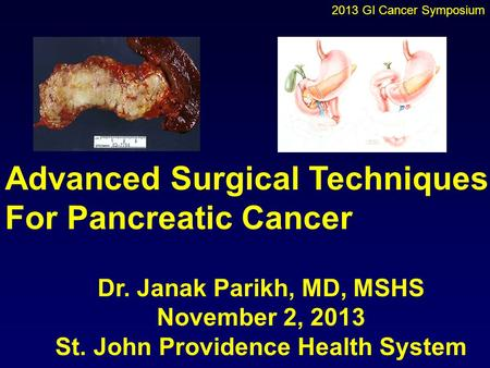 Advanced Surgical Techniques For Pancreatic Cancer Dr. Janak Parikh, MD, MSHS November 2, 2013 St. John Providence Health System 2013 GI Cancer Symposium.