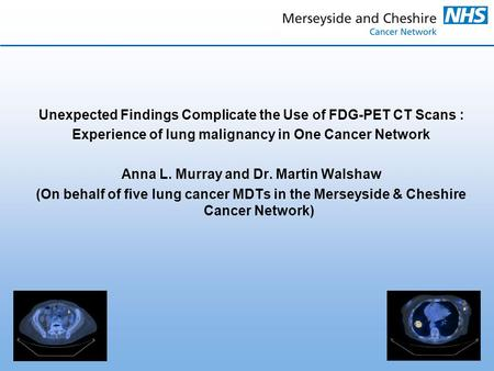 Unexpected Findings Complicate the Use of FDG-PET CT Scans : Experience of lung malignancy in One Cancer Network Anna L. Murray and Dr. Martin Walshaw.