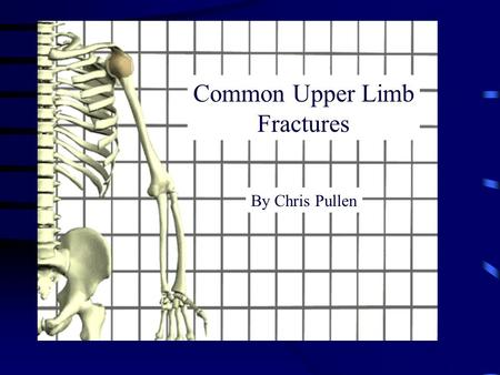 By Chris Pullen Common Upper Limb Fractures. Common Fractures Clavicle Proximal Humerus Distal radius Scaphoid.