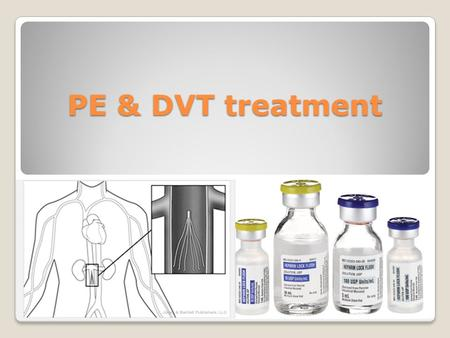 PE & DVT treatment. Classification of Emboli - Fat and Marrow ◦Sequelae from any marrow/adipose injury ◦fat and cells are released into bloodstream ◦CPR,