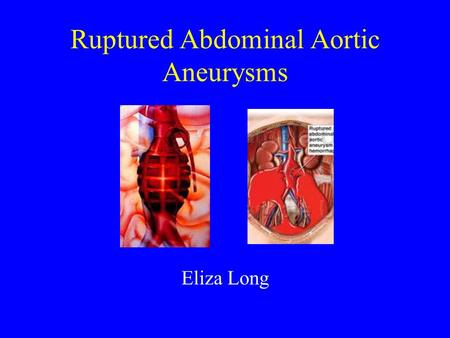Ruptured Abdominal Aortic Aneurysms Eliza Long. Treatment of the Ruptured Abdominal Aortic Aneurysm Diagnosis –Clinical –Imaging Resuscitation Surgery.