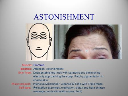 ASTONISHMENT Muscle: Frontalis Emotion: Attention, Astonishment Skin Type: Deep established lines with keratosis and diminishing elasticity approaching.