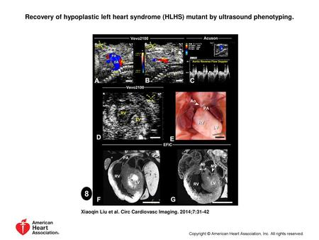 Recovery of hypoplastic left heart syndrome (HLHS) mutant by ultrasound phenotyping. Recovery of hypoplastic left heart syndrome (HLHS) mutant by ultrasound.