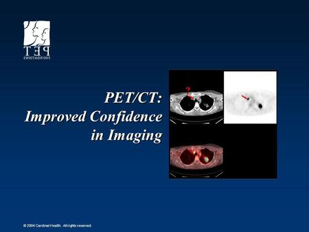 © 2004 Cardinal Health. All rights reserved. PET/CT: Improved Confidence in Imaging ?