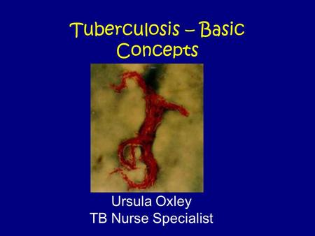 Tuberculosis – Basic Concepts Ursula Oxley TB Nurse Specialist.