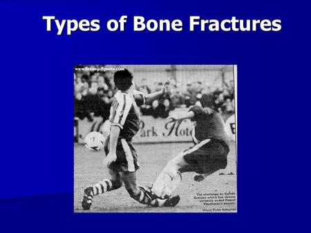 Types of Bone Fractures. Stress – Strain Force (N) Deformation (cm)