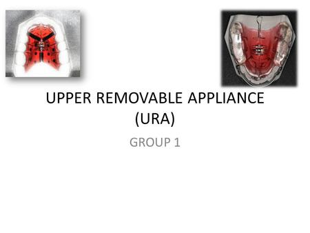 UPPER REMOVABLE APPLIANCE (URA) GROUP 1. Removable appliances Work by simple tipping movements of the crowns of the teeth about a fulcrum close to the.