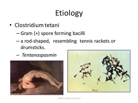 Etiology Clostridium tetani – Gram (+) spore forming bacilli – a rod-shaped, resembling tennis rackets or drumsticks. – Tentanospasmin LOPEZ, CAMILLE CECILIA.