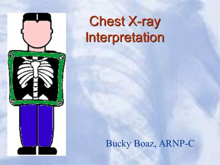 Chest X-ray Interpretation Bucky Boaz, ARNP-C. Introduction Routinely obtained Pulmonary specialist consultation Inherent physical exam limitations Chest.