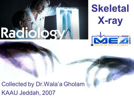 Skeletal X-ray Collected by Dr.Wala'a Gholam KAAU Jeddah, 2007.