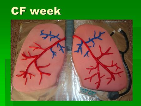 CF week. Anatomy of the LRT  Airway branchings & LMB vs RMB  Name levels from trachea to alveoli  Changes as we descend resp tract?  Pleural cavity.