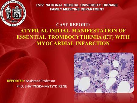 LVIV NATIONAL MEDICAL UNIVERSITY, UKRAINE FAMILY MEDICINE DEPARTMENT CASE REPORT: ATYPICAL INITIAL MANIFESTATION OF ESSENTIAL TROMBOCYTHEMIA (ET) WITH.