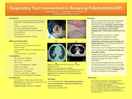 Introduction RP is a rare multisystem disorder characterized by inflammation of the cartilaginous structures of the body. Airway involvement is 50% and,