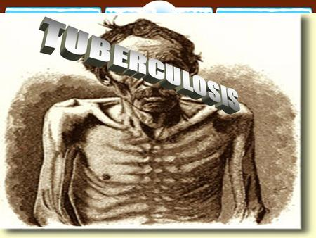 TUBERCULOSIS Pulmonary TB.