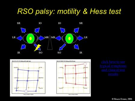 RSO palsy: motility & Hess test IO SO SR IR MRLR IO SO SR IR MR LR click here to see typical symptoms and clinical test results Change this for F5233 ©