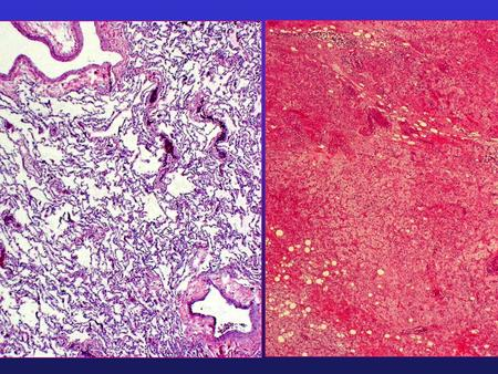 Final Diagnosis: Lung Mass, Right (wedge excision): - Metastatic myxoid Liposarcoma, grade 2 of 4. Note: This tumor has an appearance similar.