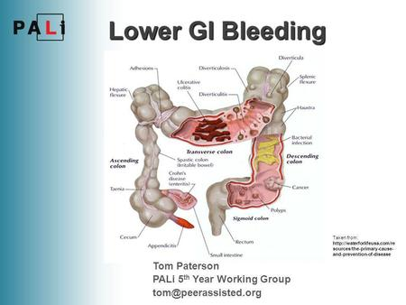 Taken from:  sources/the-primary-cause- and-prevention-of-disease Lower GI Bleeding Tom Paterson PALi 5 th Year Working Group.