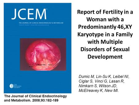 Report of Fertility in a Woman with a Predominantly 46,XY Karyotype in a Family with Multiple Disorders of Sexual Development Dumic M, Lin-Su K, Leibel.