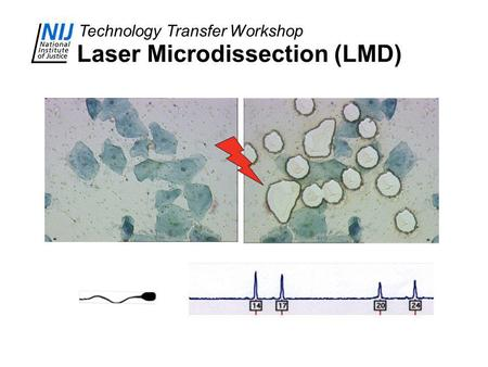 Technology Transfer Workshop Laser Microdissection (LMD)