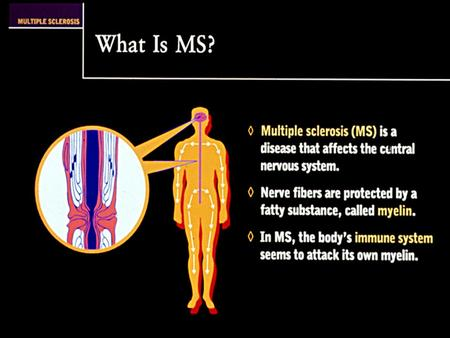 New Multiple Sclerosis Diagnostic Criteria CLINICAL ATTACKS OBJECTIVEADDITIONAL REQUIREMENTS 2 or more None; clinical evidence will suffice 2 or more1Dissemination.
