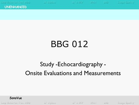 BBG 012 Study -Echocardiography - Onsite Evaluations and Measurements UNENHANCED SonoVue.