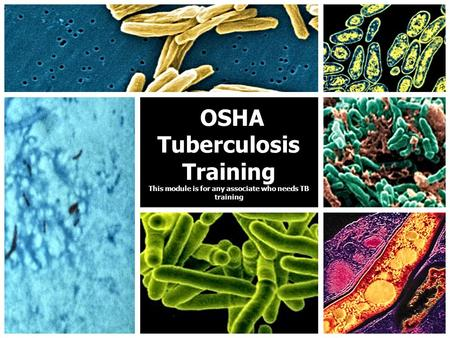 OSHA Tuberculosis Training This module is for any associate who needs TB training OSHA Tuberculosis Training This module is for any associate who needs.