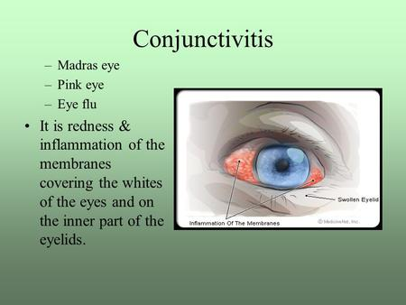 Conjunctivitis –Madras eye –Pink eye –Eye flu It is redness & inflammation of the membranes covering the whites of the eyes and on the inner part of the.