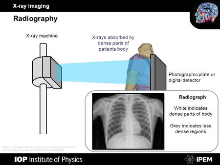 X-ray imaging Radiography Photographic plate or digital detector X-ray machine X-rays absorbed by dense parts of patients body White indicates dense parts.