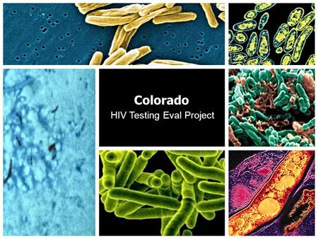 Colorado HIV Testing Eval Project 1. Background to HIV Testing Eval Project TB Epidemiologist and Assistant TB Program Manager for Colorado's Dept. of.
