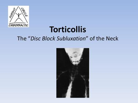 "Torticollis The ""Disc Block Subluxation"" of the Neck."