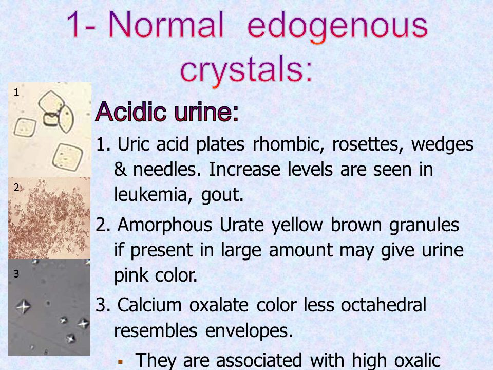 gout arthritis natural remedy normal level of uric acid in females fruits that lower uric acid levels