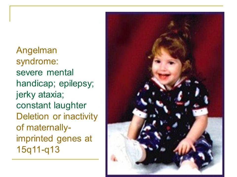 Developmental Brain Disorders Erick Sell CHEO ppt download