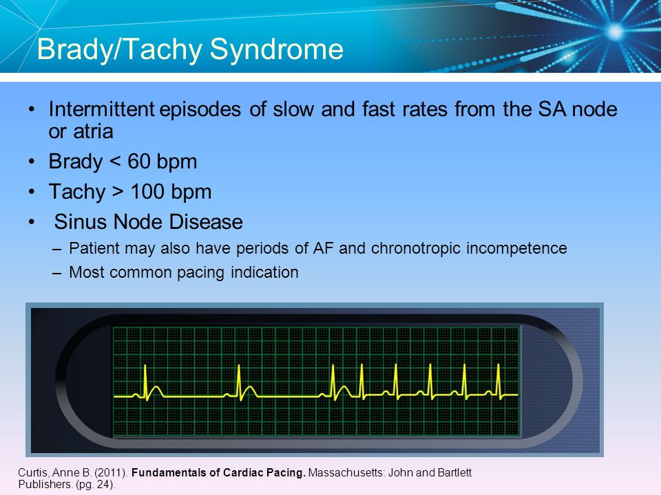 Brady/Tachy Syndrome Intermittent episodes of slow and fast rates from the SA node or atria. Brady < 60 bpm.