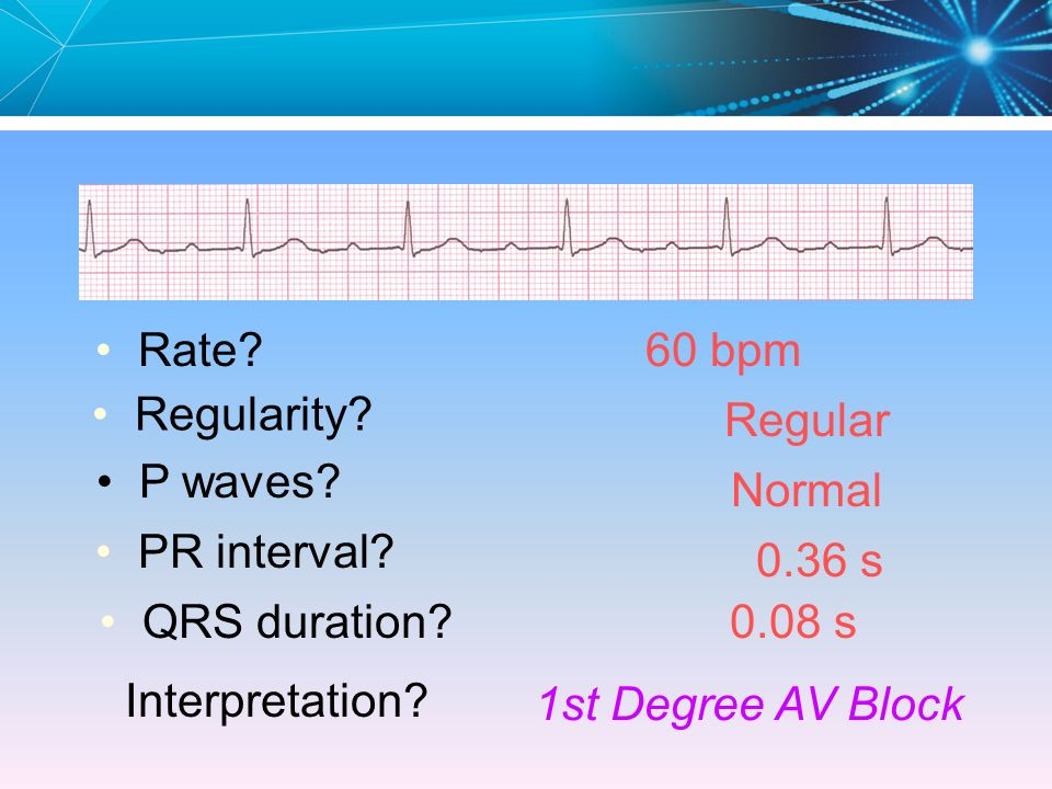Rate 60 bpm. Regularity Regular. P waves Normal. PR interval 0.36 s. QRS duration 0.08 s.