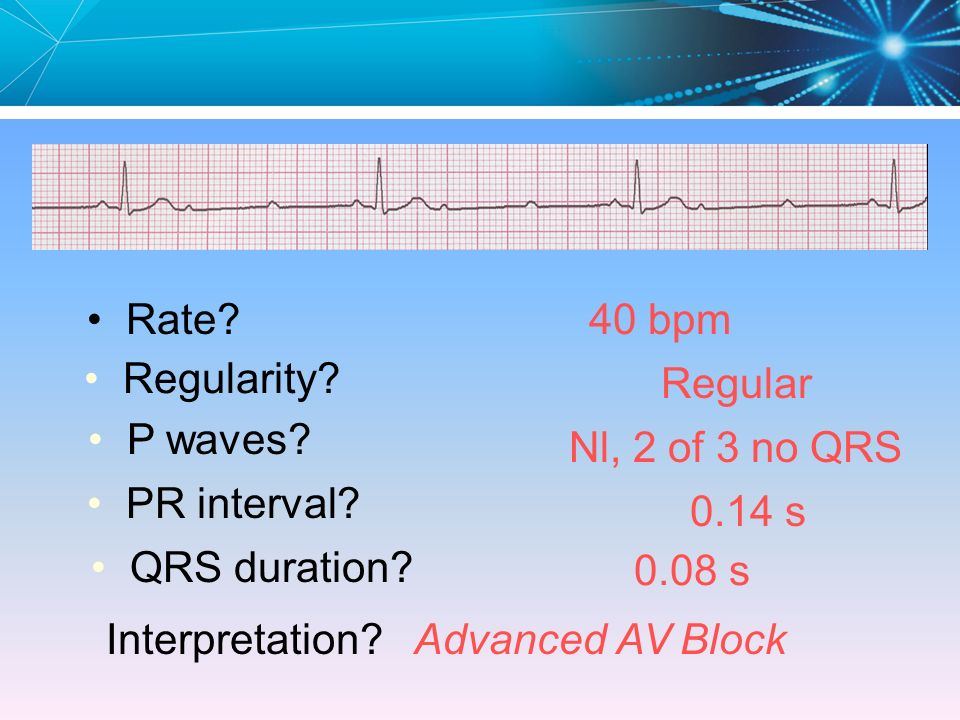 Rate 40 bpm. Regularity Regular. P waves Nl, 2 of 3 no QRS. PR interval 0.14 s. QRS duration