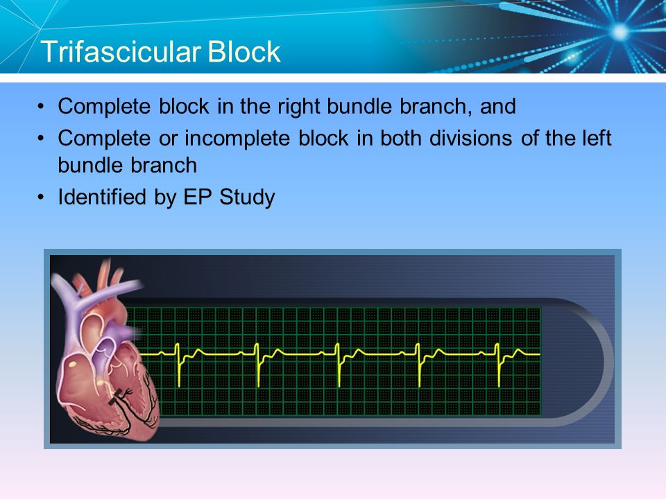 Trifascicular Block Complete block in the right bundle branch, and