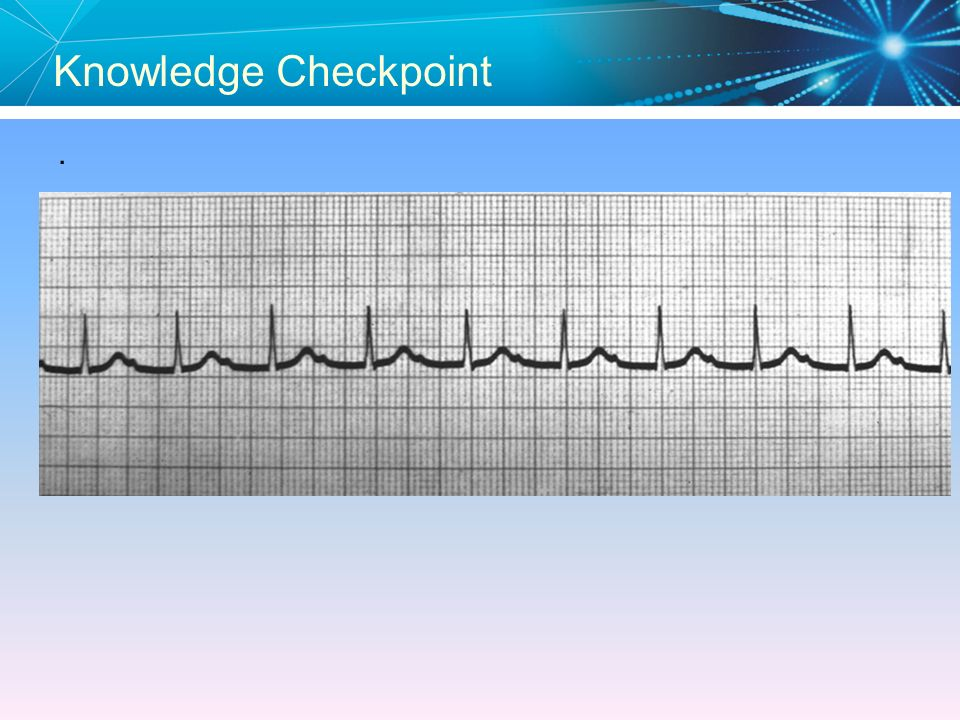 Knowledge Checkpoint . Answer: First Degree AV Block