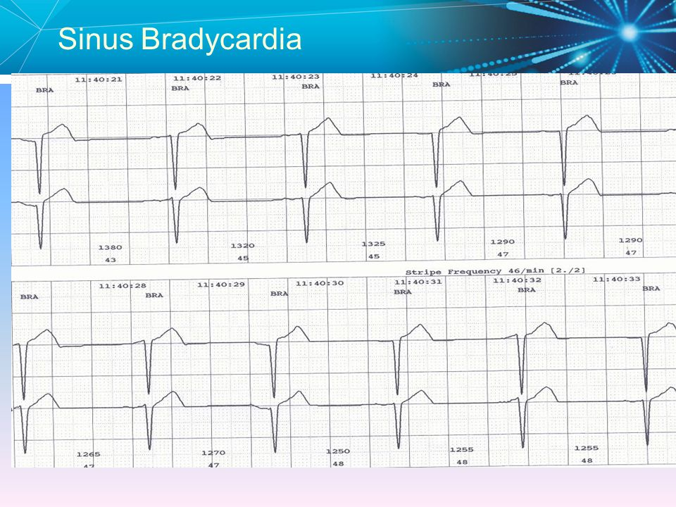 Sinus Bradycardia Because of severe sinus bradycardia, Junctional 'escape' beats have appeared.