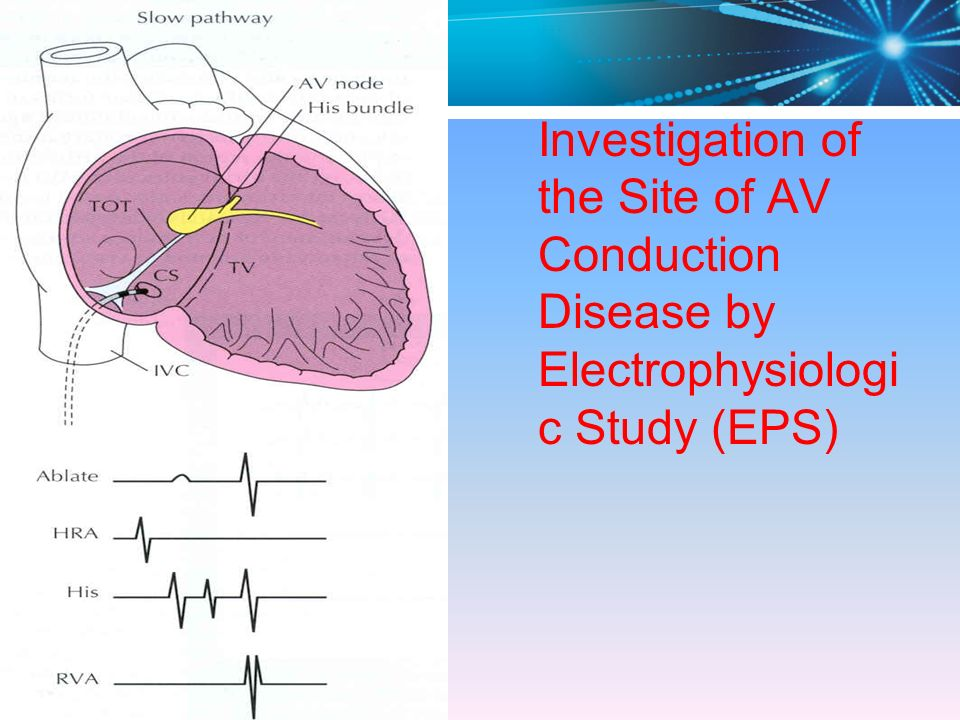 Investigation of the Site of AV Conduction Disease by Electrophysiologic Study (EPS)