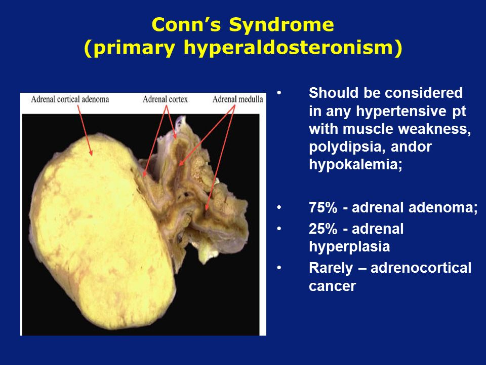 Symptoms Of Conn S Syndrome